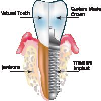 Titanium Dental Implant Manufacturers