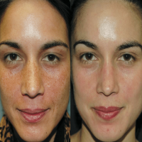 Chemical Peel Manufacturers