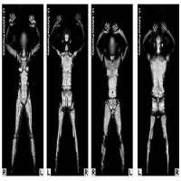 Full Body Scanner Manufacturers
