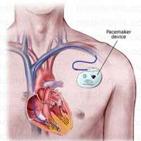 Pacemaker Manufacturers